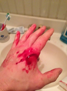 bloody injured hand open wound cut