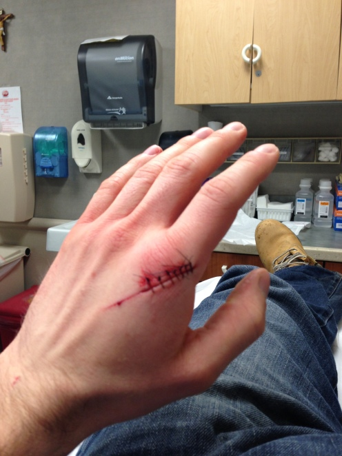 wounded hand with stitches in hospital