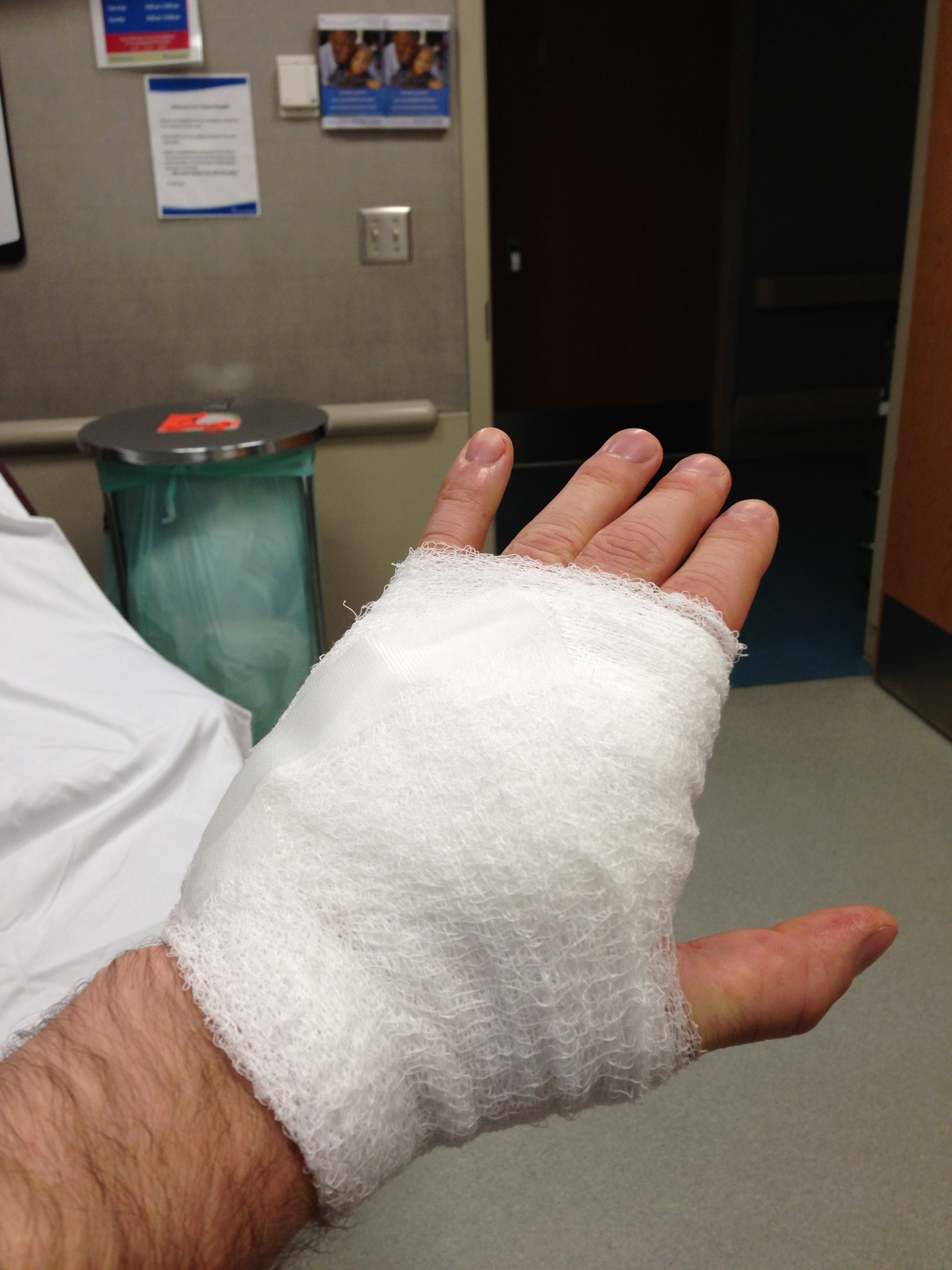 bandaged hand wrapped in gauss at hospital